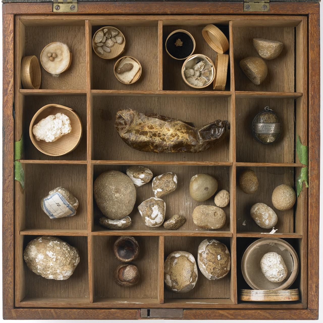 Kistje met steenconcrementen afkomstig van operaties en secties